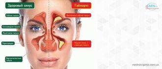 Лечение синуситов (гайморита, фронтита, сфеноидита)