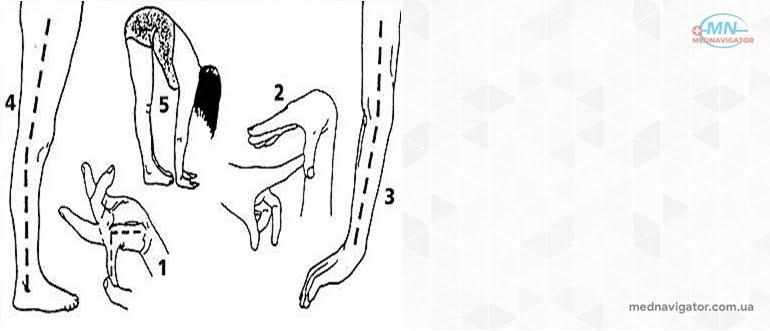 Синдром гипермобильности суставов в общей практике