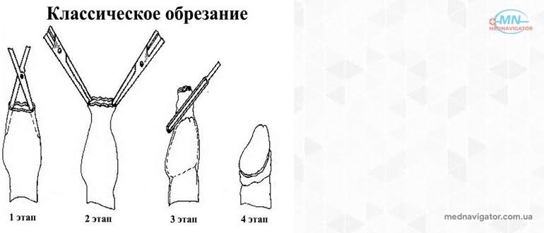 Различные стили и способы обрезания крайней плоти
