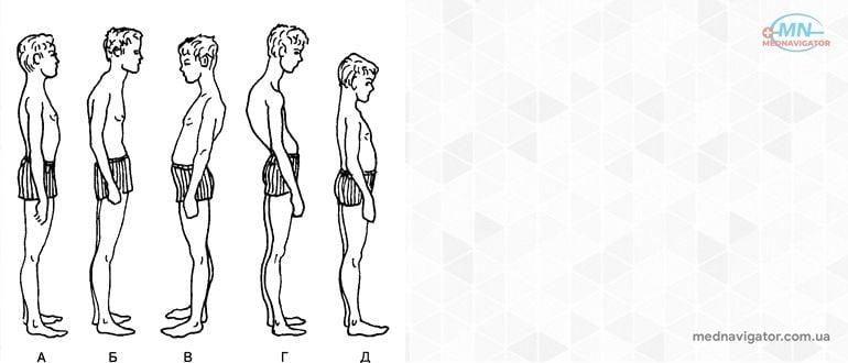 Общие представления об осанке и телосложении