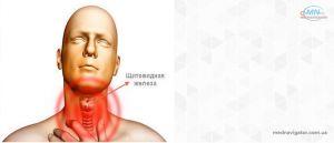 Заболевания щитовидной железы.