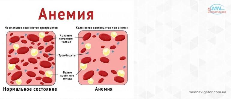 Анемии. Причины и лечение анемий