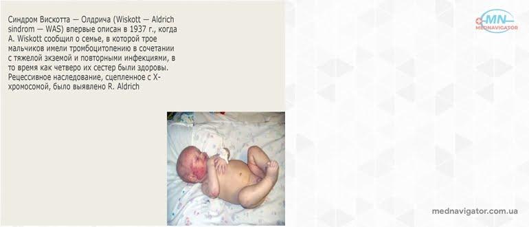 Синдром Вискотта-Олдрича (СВО)