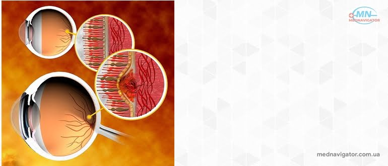 Глазная патология - факторы наследственности и внутриутробного развития