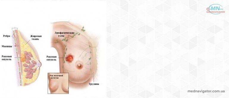 Рак молочной желез