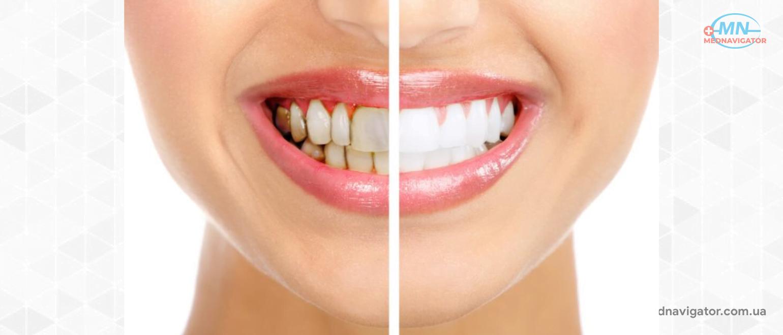 Что такое зубной камень?