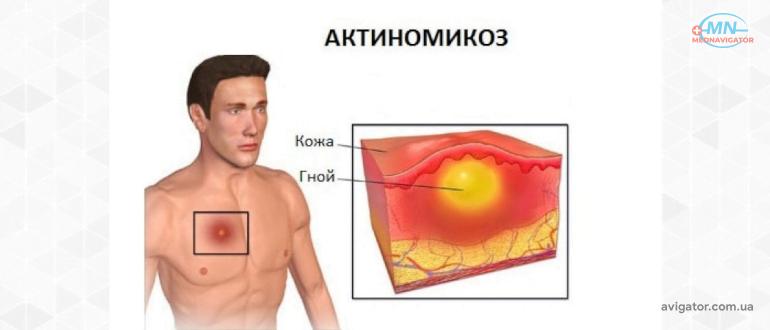 Актиномикоз и его лечение