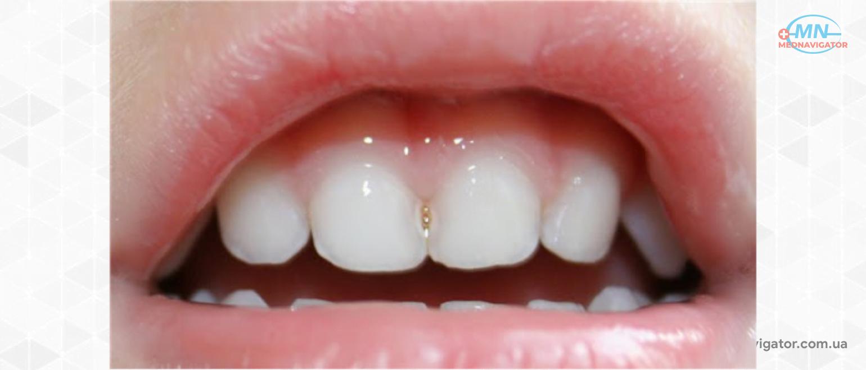 Серебрение зубов: особенности, показания