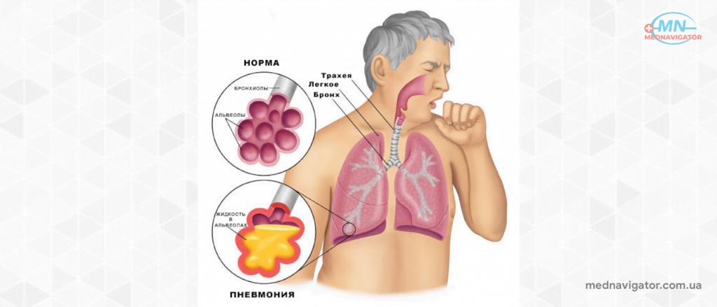 Пневмония: симптомы и проявления
