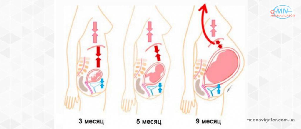 Изжога при беременности: причины появления и способы лечения
