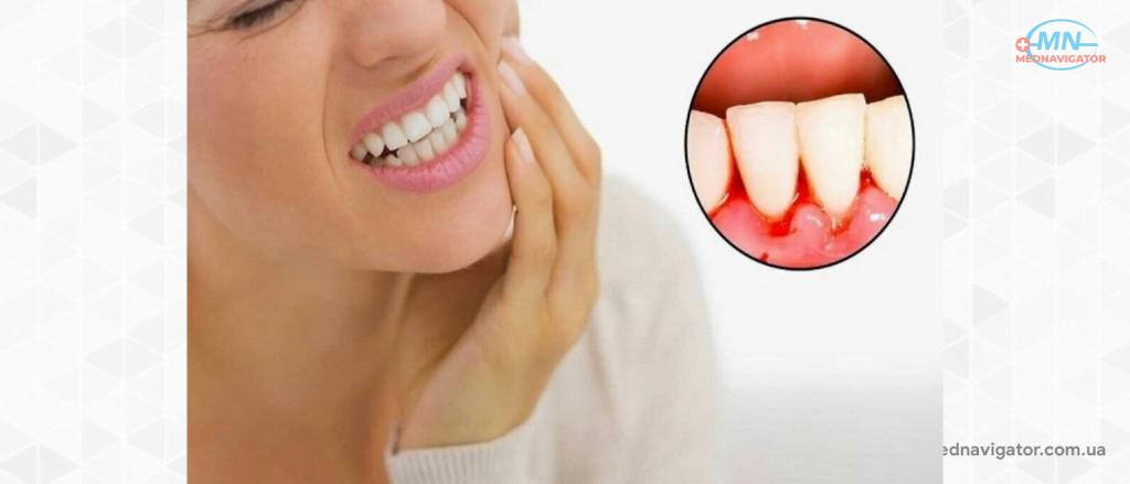 Можно ли чистить зубы солью?