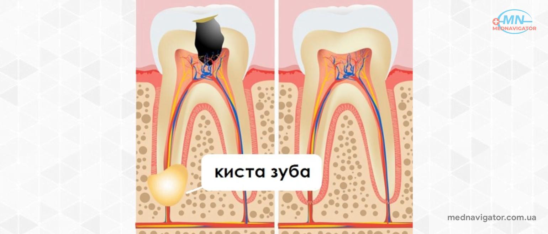 Киста зуба – причины, симптомы, диагностика