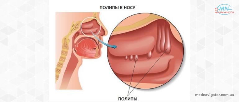 Воспаление слизистой оболочки носа