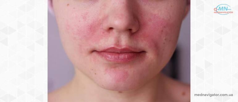 Периоральный дерматит: симптомы, причины, лечение