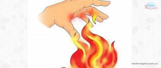 Помощь при ожогах