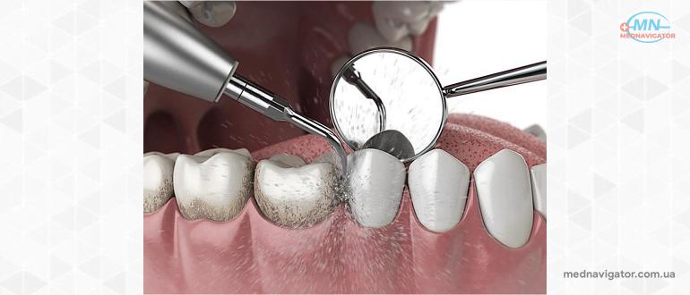 Как чистить зубы профессионально?