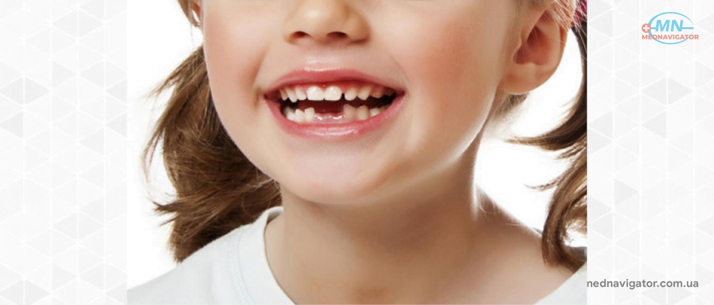 В каком возрасте меняются зубы - есть ли точный срок?
