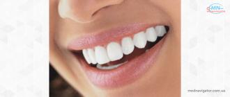 Как часто можно отбеливать зубы?