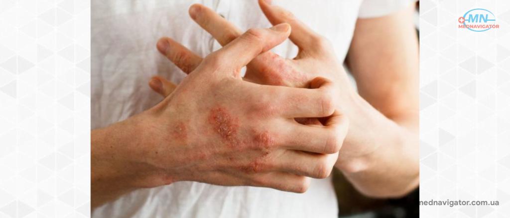 Микробная экзема: симптомы и лечение