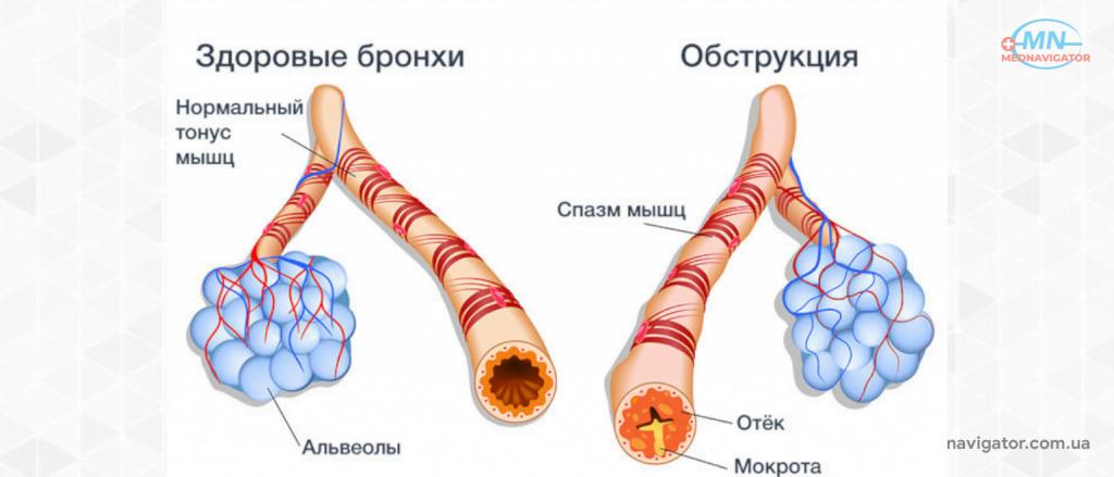 Симптомы и лечение хронического бронхита