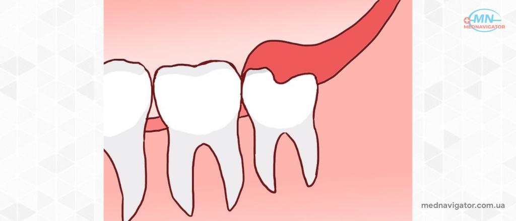 Удаление коренного зуба