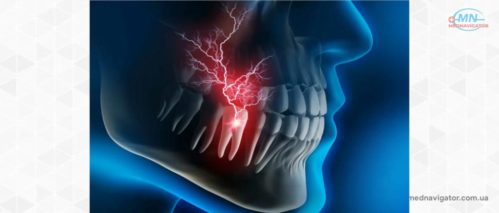 Острая зубная боль - лечение