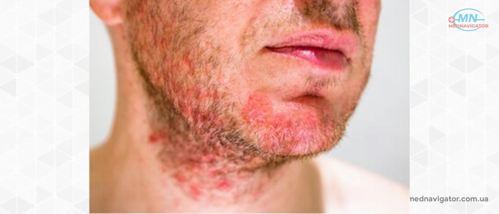 Как лечить себорейный дерматит