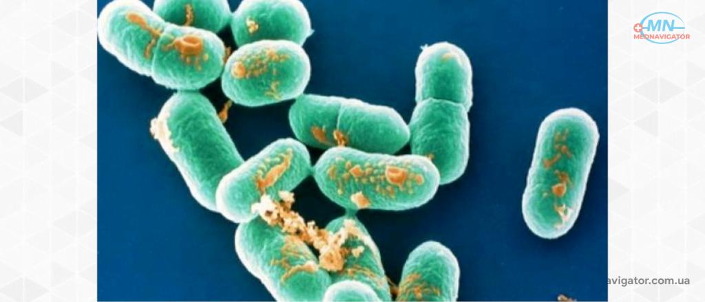 Возбудитель и эпидемиология листерии моноцитогенес