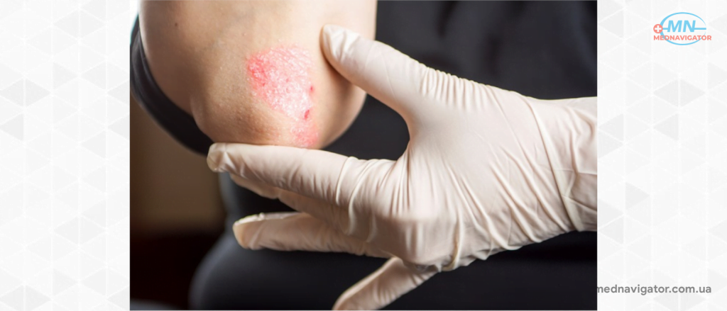 Каплевидный псориаз: причины, симптомы, лечение