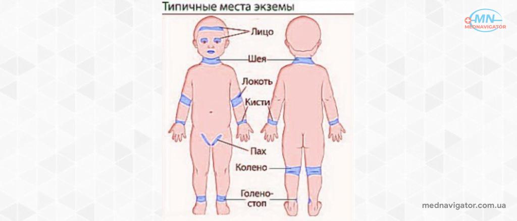 Экзема у детей: симптомы и лечение