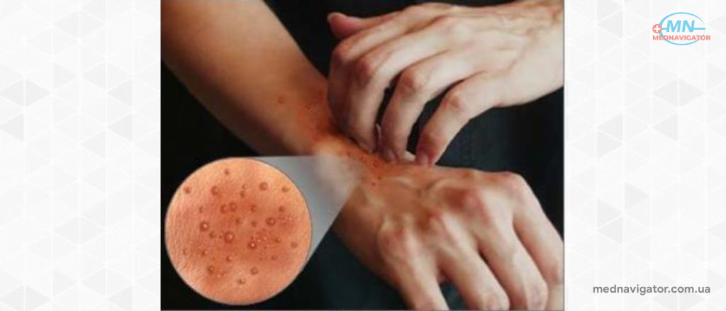 Нейродермит на руках: причины, симптомы, лечение