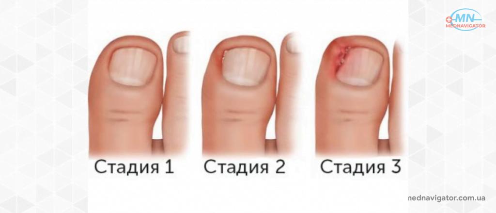 Удаление вросшего ногтя лазером