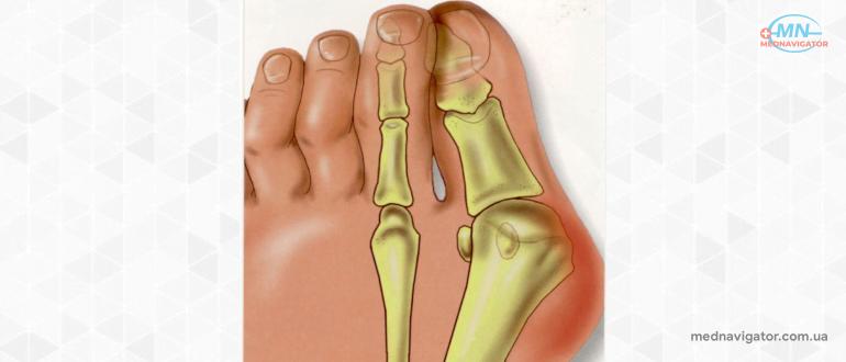 Hallux valgus (вальгусная деформация первого пальца стопы): причины, симптомы и лечение