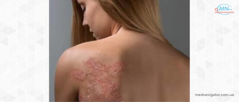 Что такое псориаз — причины, виды, симптомы, лечение