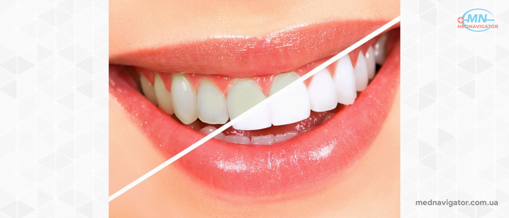4 самых больших недостатка отбеливания зубов