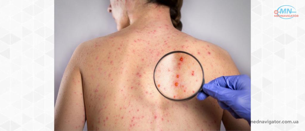 3 самые опасные инфекции, которые передаются только половым путем