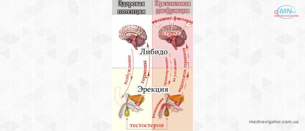 Эректильная дисфункция - причины, лечение