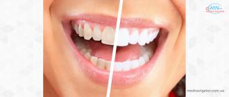 Как эффективно отбелить зубы с помощью 6 натуральных средств?