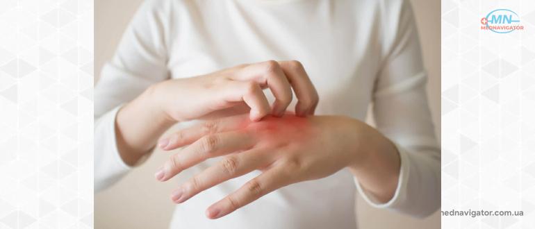 Узнайте о том, как правильно бороться с псориазом