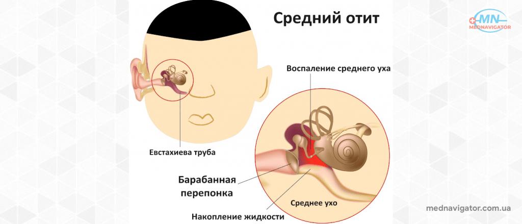 Болят уши? Попробуйте эти бабушкины рецепты